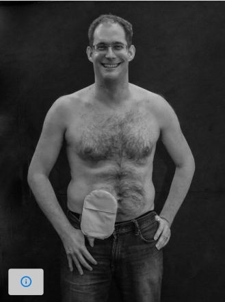 Topless photo of Richard, showing his ileostomy bag